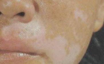 嘴上出现的白癜风要怎么护理